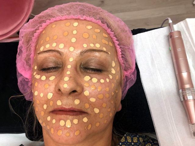 Kosmetikstudio-Schoenheitszentrum-Esslingen-Gesichtsbehandlung_1
